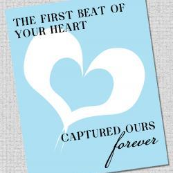 "Nursery Art Print ""The first beat of your heart captured ours"""